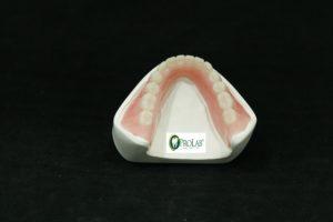 full dentures 2