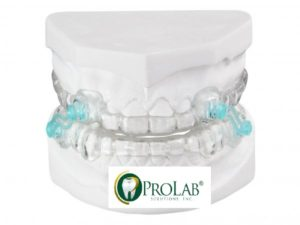 orthodontic 2